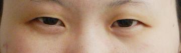 水の森美容外科の目・二重の整形の症例写真[ビフォー]