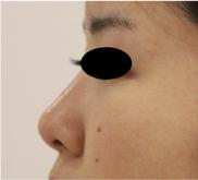 すなおクリニック(京都女性医師美容外科・美容皮膚科)の症例写真[アフター]