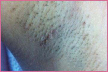 リゼクリニックの医療レーザー脱毛の症例写真[ビフォー]