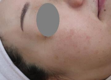 スキンコスメクリニックグループのシミ治療(シミ取り)・肝斑・毛穴治療の症例写真[アフター]
