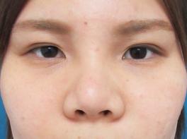 鼻のプロテーゼ・耳介軟骨移植(術後8ヶ月)の症例写真[アフター]