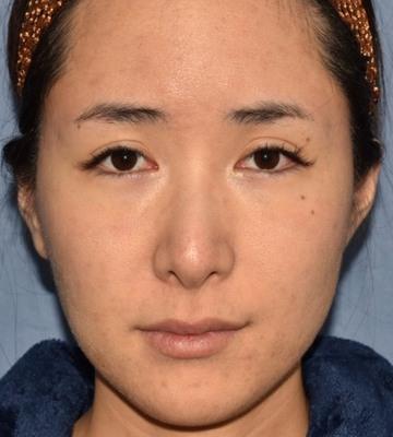 の顔のしわ・たるみの整形(リフトアップ手術)の症例写真[ビフォー]