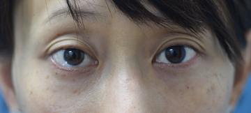 みずほクリニックの目元の整形、くま治療の症例写真[ビフォー]