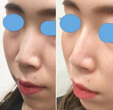 鼻 ヒアルロン酸 評判