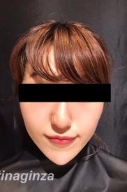 CHRISTINA clinic GINZA(クリスティーナクリニック銀座)の顔の整形(輪郭・顎の整形)の症例写真[アフター]