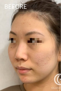 GLANZ CLINIC(グランツクリニック)の鼻の整形の症例写真[ビフォー]
