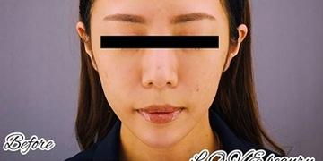 GRACIA clinic(グラシアクリニック)(旧L.O.V.E beauty clinic)の顔のしわ・たるみの整形(リフトアップ手術)の症例写真[ビフォー]