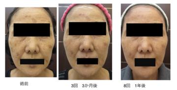 天神かよこクリニックのシミ治療(シミ取り)・肝斑・毛穴治療の症例写真