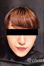 CHRISTINA clinic GINZA(クリスティーナクリニック銀座)の顔の整形(輪郭・顎の整形)の症例写真[ビフォー]