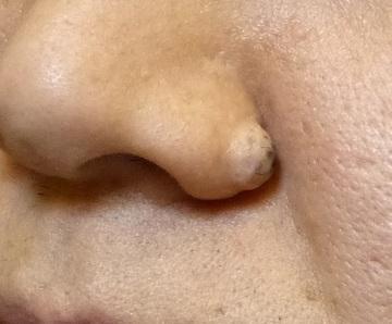 さやか美容クリニック・町田のほくろ除去・あざ治療・イボ治療の症例写真[ビフォー]