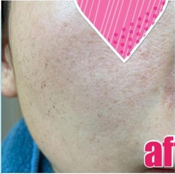 のシミ治療(シミ取り)・肝斑・毛穴治療の症例写真[アフター]