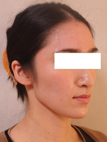 ビューティークリニック ザ ギンザの顔の整形(輪郭・顎の整形)の症例写真[アフター]
