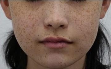 静岡美容外科橋本クリニックのシミ治療(シミ取り)・肝斑・毛穴治療の症例写真[ビフォー]