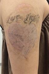 いろはビューティークリニックのタトゥー除去(刺青・入れ墨を消す治療)の症例写真[アフター]