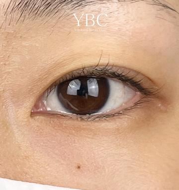 YBC横浜美容外科 大宮院の目・二重整形の症例写真[ビフォー]