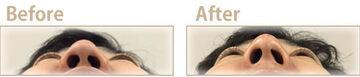 共立美容外科・歯科の鼻の整形の症例写真