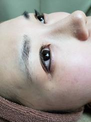 クリニーク大阪心斎橋 ❘ 梅田スカイナイトクリニックのアートメイクの症例写真[ビフォー]