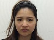 新宿美容外科クリニックの目・二重の整形の症例写真[アフター]