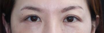 レア形成外科・美容皮膚科の目元整形・クマ治療の症例写真[ビフォー]