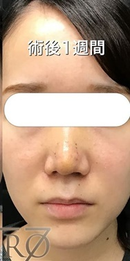 鼻尖形成のモニター様の症例写真[アフター]