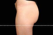 八事石坂クリニック名古屋駅前院(美容外科)の痩身、メディカルダイエットの症例写真[アフター]