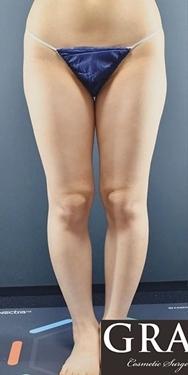 太もも全周ベイザー脂肪吸引の症例写真[ビフォー]