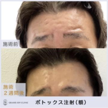グランジョイクリニックの顔のしわ・たるみの整形の症例写真