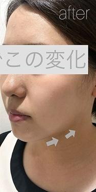 銀座長瀬クリニックのシワ・たるみ(照射系リフトアップ治療)の症例写真[アフター]