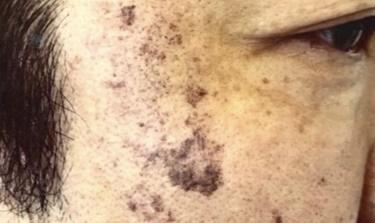 院内で人気のシミ取り治療【フォトシルク・プラス】の症例写真