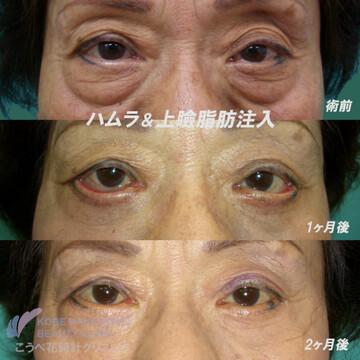 こうべ花時計クリニックの目元整形・クマ治療の症例写真