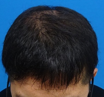 TCB東京中央美容外科の薄毛治療・AGA・発毛の症例写真[アフター]
