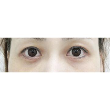 水の森美容外科の目元の整形、くま治療の症例写真[アフター]