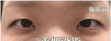 西宮SHUHEI美容クリニックの目・二重整形の症例写真[ビフォー]