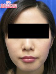 湘南美容クリニック銀座院の痩身、メディカルダイエットの症例写真[ビフォー]
