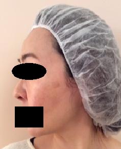 シミ治療・QスイッチYAGレーザーの症例写真[ビフォー]