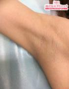 湘南美容クリニック 名古屋 栄院のわきが手術・多汗症治療の症例写真[ビフォー]