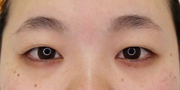 湘南美容クリニック 渋谷院の目・二重整形の症例写真[ビフォー]