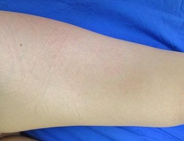 新宿フェミークリニックの医療レーザー脱毛の症例写真[アフター]
