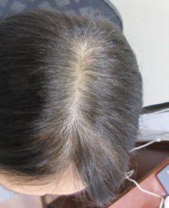 エルクリニックの薄毛治療の症例写真[アフター]
