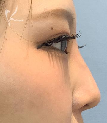恵聖会クリニックの鼻の整形の症例写真[アフター]
