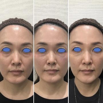 しのぶ皮膚科の目元整形・クマ治療の症例写真