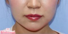 あご ヒアルロン酸の症例写真[アフター]