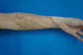 ガーデンクリニックのタトゥー除去(刺青・入れ墨を消す治療)の症例写真[アフター]