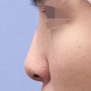 鼻尖形成・鼻中隔延長・人工真皮移植/術後1週間[ビフォー]