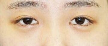 新宿ラクル美容外科クリニックの目・二重の整形の症例写真[ビフォー]