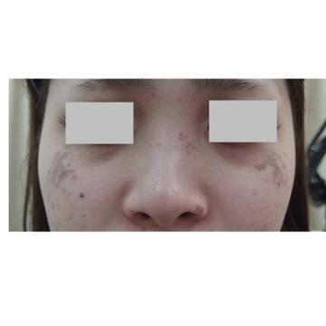 新宿ビューティークリニックのシミ治療(シミ取り)・肝斑・毛穴治療の症例写真[ビフォー]