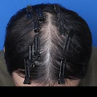 の薄毛治療の症例写真[アフター]