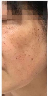 銀座長瀬クリニック 大阪院のシミ治療(シミ取り)・肝斑・毛穴治療の症例写真[ビフォー]