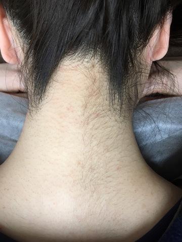 ふじもと皮フ科クリニックの医療レーザー脱毛の症例写真