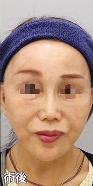 銀座みゆき通り美容外科 大阪院の症例写真[アフター]